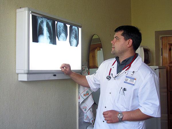 к.м.н., ассистент Козарезов С.Н. проводит диф. диагностику пневмонии по рентгенологическим снимкам